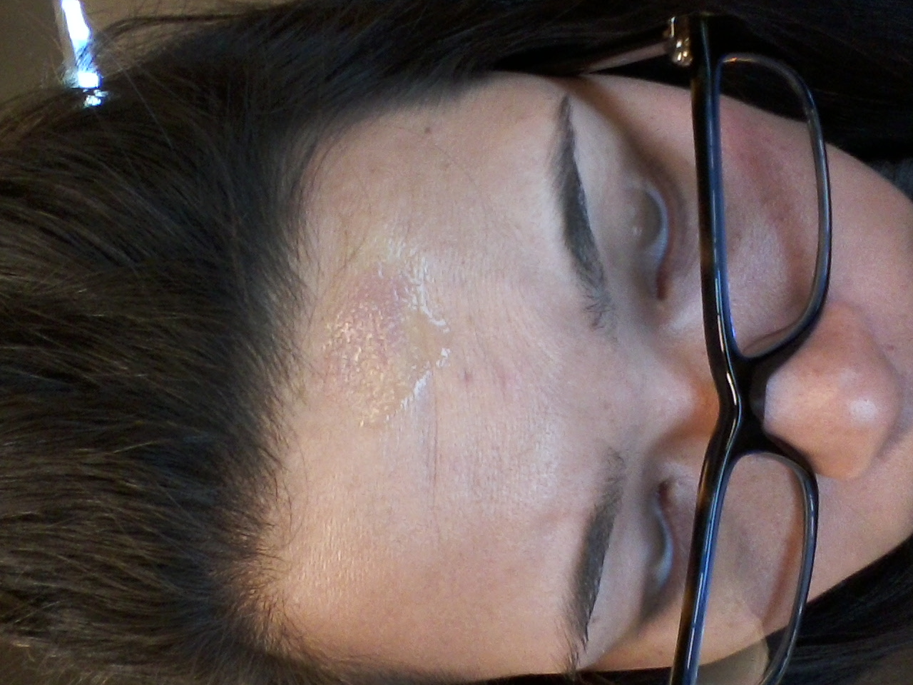 Hydrochloric Acid Burn...
